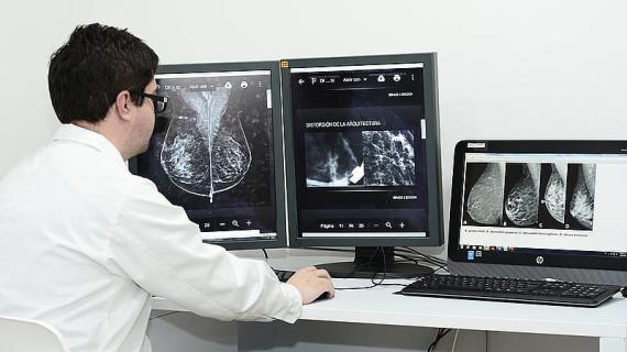 Herramienta detecta lesiones ocultas en cáncer de seno