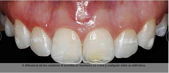 Blanqueador biomimético evitaría daño del esmalte dental